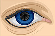 Cortical cataract