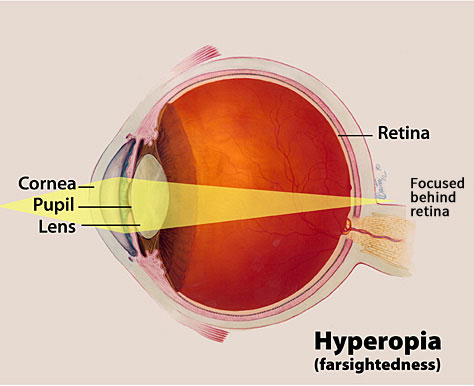 Farsighted Hyperopia