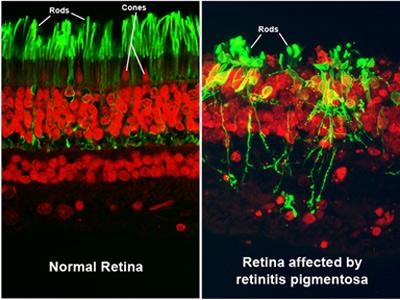 Normal vs Pigmentosas