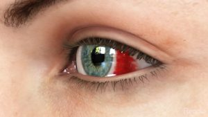 A subconjunctival hemorrhage diagram, image courtesy of Emory Eye Center.