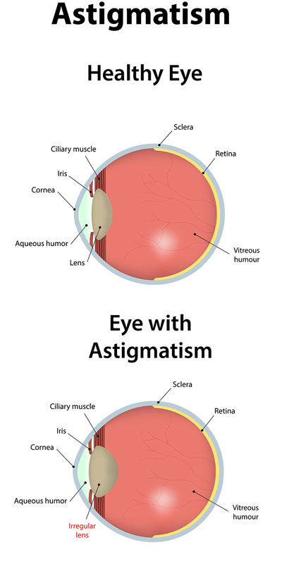 01858d7c08 Astigmatism causes Blurred Vision - First Eye Care Downtown Dallas